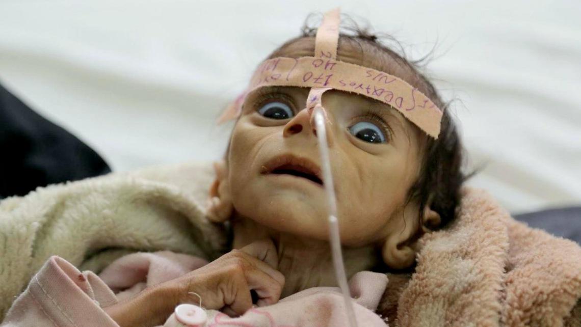 starving-baby-yemen
